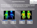 Circulation-Thermography-Changes.jpg