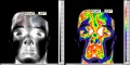 Figure thermography comparaison human.jpg