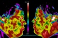 Dental-pain-thermography.jpg