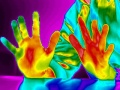 Sclerose-thermographie-ici.jpg