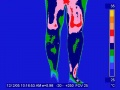 Legs human infrared thermography.jpg