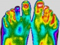 Pieds-fille-thermographie-infrarouge.jpg